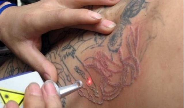 como remover tatuagem definitiva sem dor