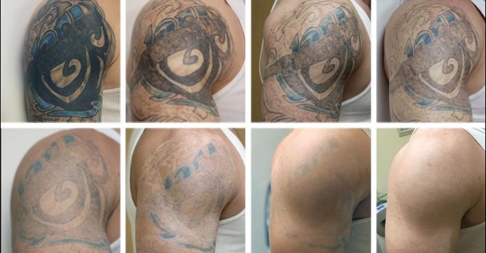 confira como remover tatoo naturalmente e de maneira definitiva
